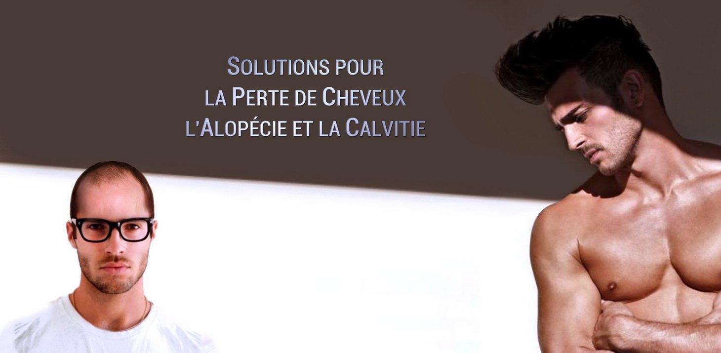 Perte de cheveux calvitie alop cie solutions la for Perte de cheveux homme